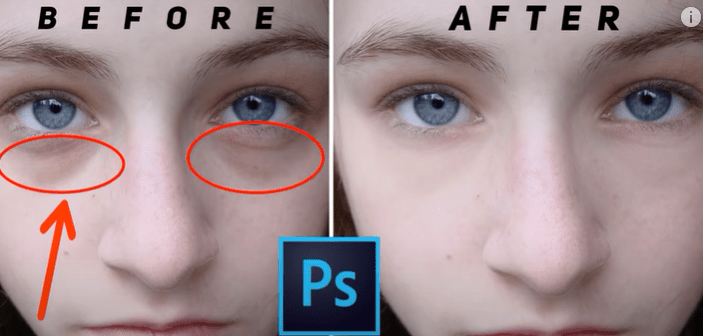 How to Remove Skin Blemishes in Photoshop 2021